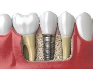 dental implants in Costa Mesa, California