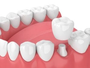 dental crowns in costa mesa, ca