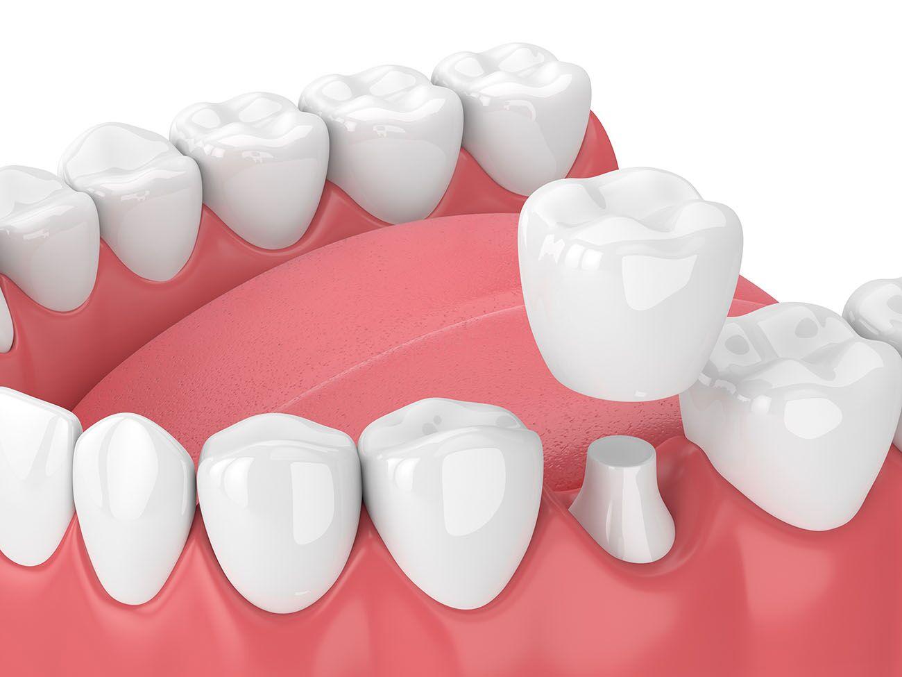 dental crowns in costa mesa, ca