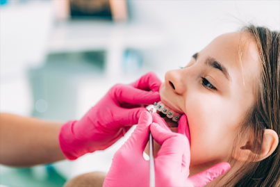 Kids orthodontics Irvine