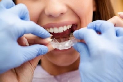 How much is invisalign price